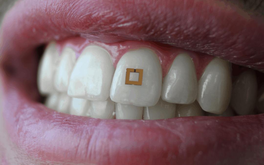 Der Food-Tracker für den Zahn